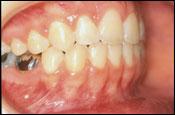 Order Orthodontic Treatment