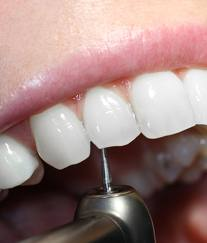 Order Tooth Coloured Fillings