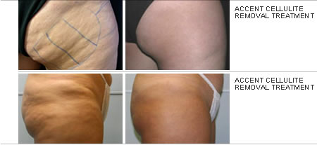 Order Fat & Cellulite Reduction