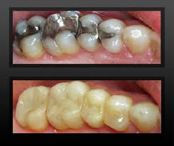Order White, Tooth Coloured Fillings