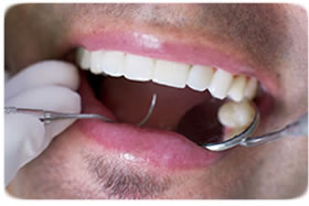 Order Dental Crowns and Bridges