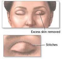 Order Eyelid surgery