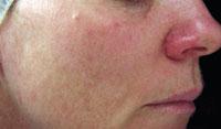 Order Skin Treatments