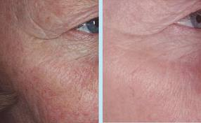 Order Photorejuvenation