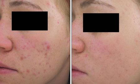 Acne Red Light IPL Treatment
