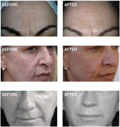 Order Scar Reduction Therapy (SRT)