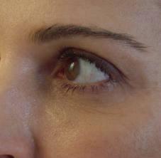 Order Dermal Filler treatment for tear troughs