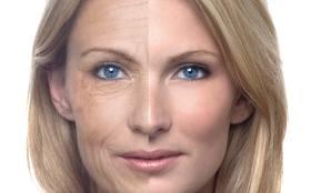 Order Anti Wrinkle Treatment
