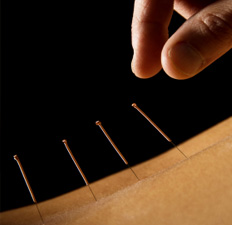 Order Acupuncture