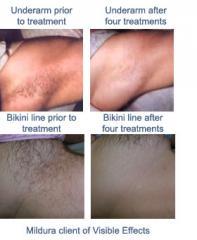 IPL Hair Reduction