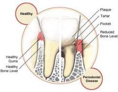 Periodontal Treatment & Care