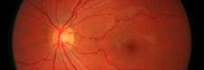 Glaucoma Treatment