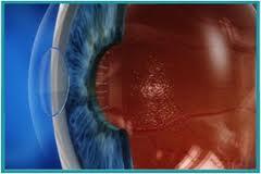 Implantable lenses