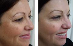 Botox & Anit-Wrinkle Treatments