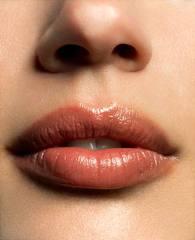 Dermal Fillers & Beautiful Lips