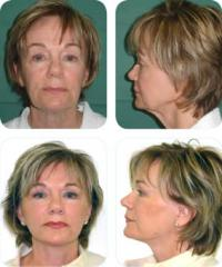 Facelift Surgery (Meloplasty)