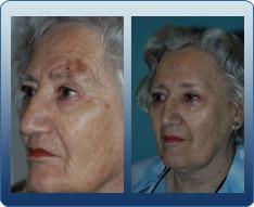 Skin Cancer & Melanoma Surgery of the Head
