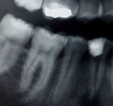 X - rays