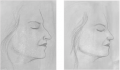 Cosmetic Nose Surgery (Rhinoplasty)